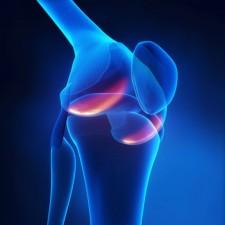 Rheumatoid Knee