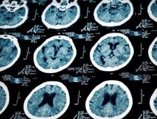 Brain MRI-Alzheimer's