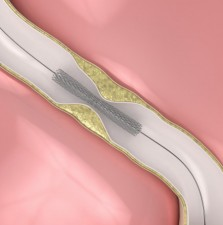 PCI and stent
