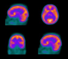 Brain scans: Stroke