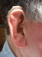 Tradtl. Hearing Aid