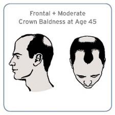 cook_baldness_illustration_resized