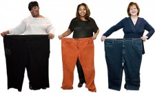 bariatric-surgery-patients