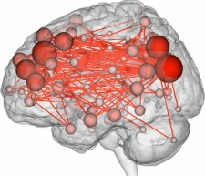 Brain Activity Interconnections