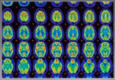 PET scans for beta-Amyloid