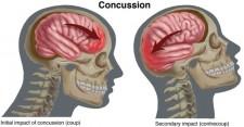 Concussion-Small