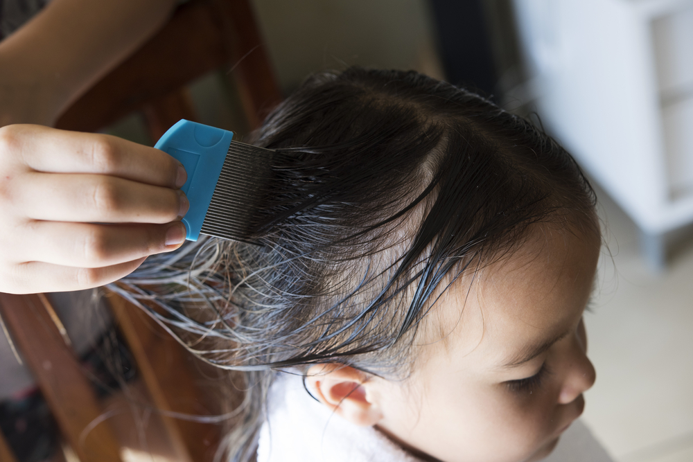 Highly Resistant Super Lice Requires Stronger Treatment American