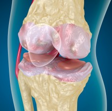 Osteoarthritis via Shutterstock