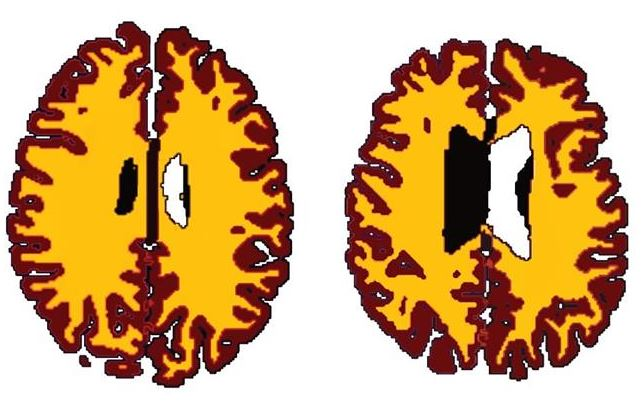 Comparison of grey matter (brown) and white matter (yellow) in sex-matched subjects A (56 years, BMI 19.5) and B (50 years, BMI 43.4). Credit: Lisa Ronan
